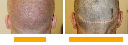 Injertos de pelo - Diferencia entre FUE y FUSS