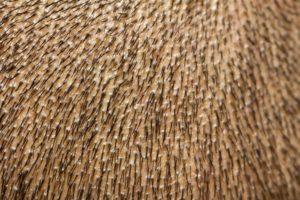 El pelo crece en direcciones diferentes - Ponerse pelo - Trasplante capilar - Sanantur Clinic