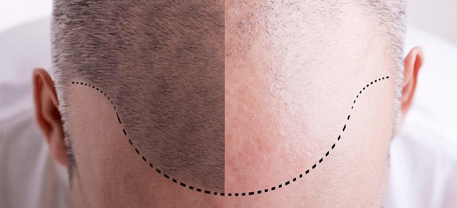 Comment se déroule une greffe de cheveux FUE