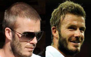 Injerto de pelo en David Beckham