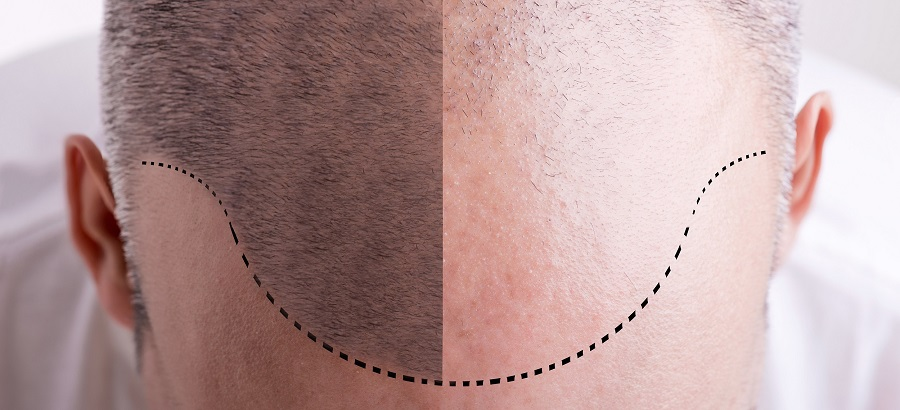 Linea frontal para injerto capilar