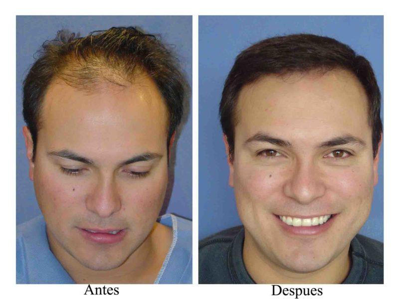 Trasplante de barba antes y despues de adelgazar