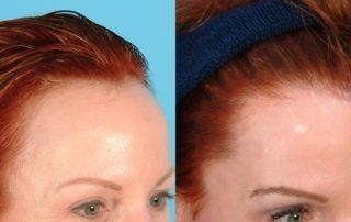 Linea frontal de pelo
