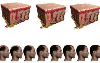 Mejora tu apariencia con implantes capilares