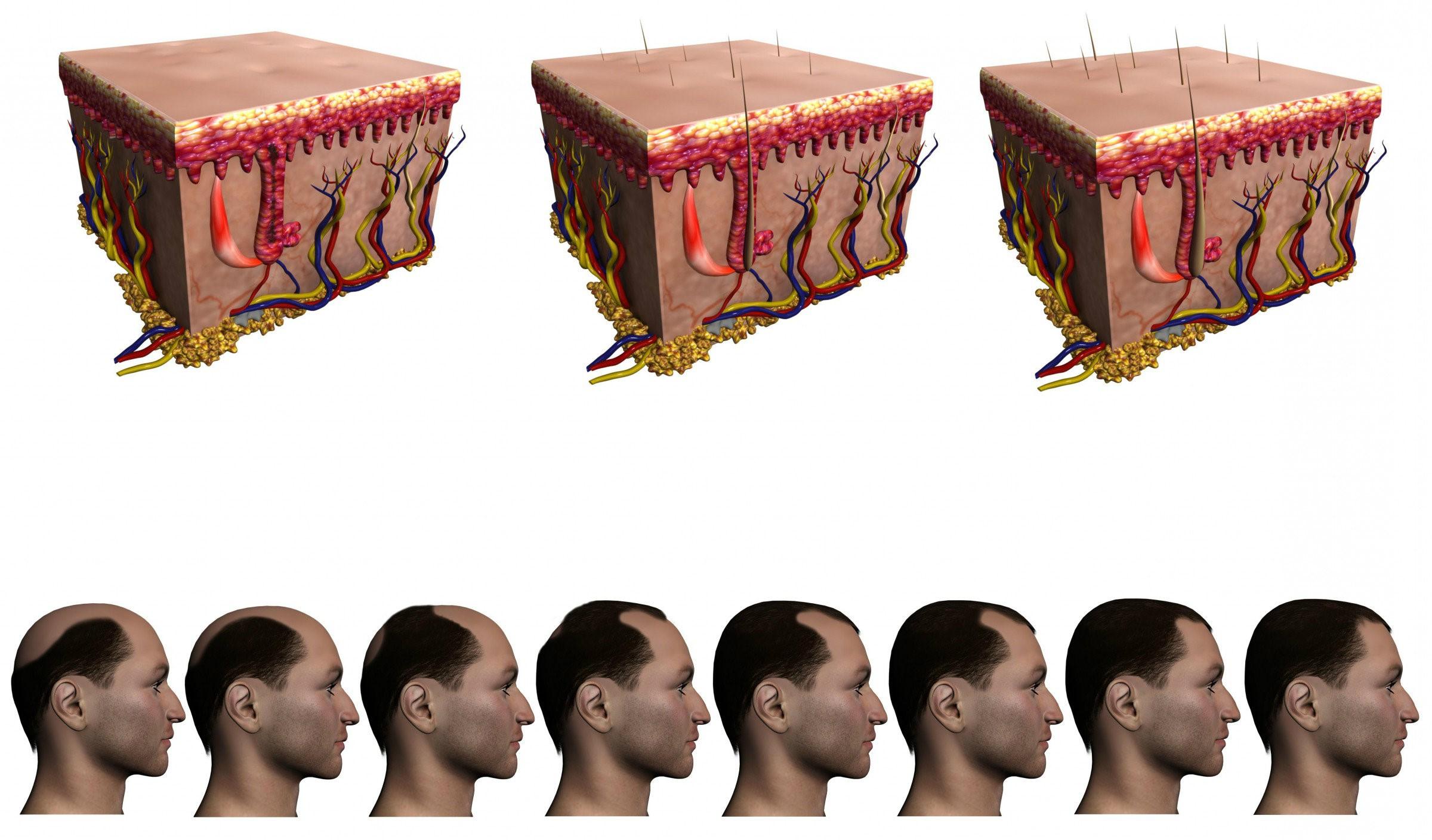 Trasplantes capilares para mejorar su apariencia