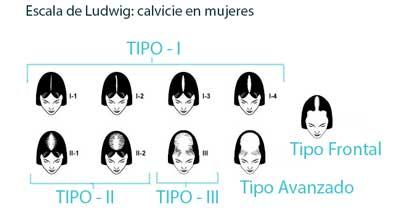 Escala Ludwig: Medición de alopecia en mujeres