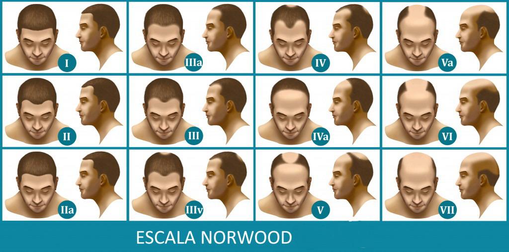 Escala Norwood para medir alopecia