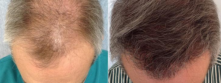Recuperar el pelo con Sanantur