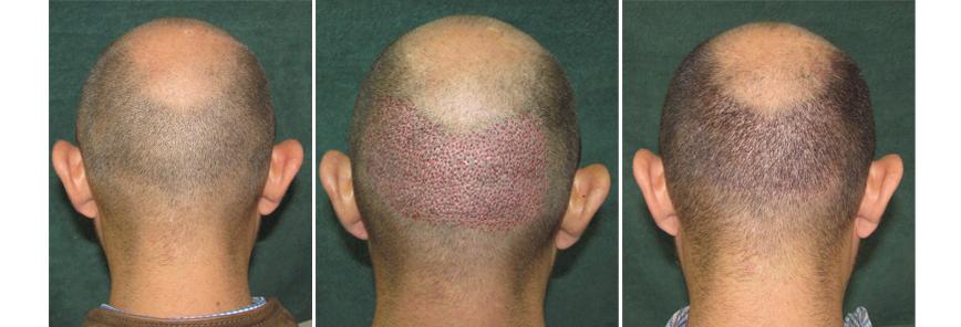 Micrograffe des cheveux avant et après