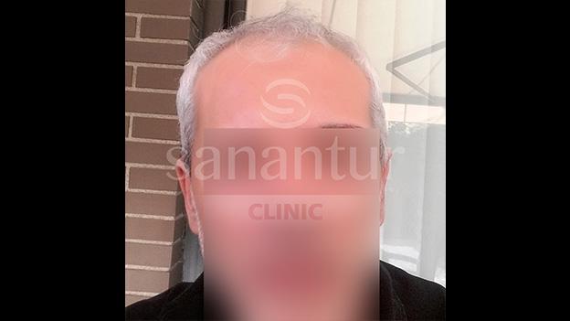 Antes implante capilar: Paciente 2