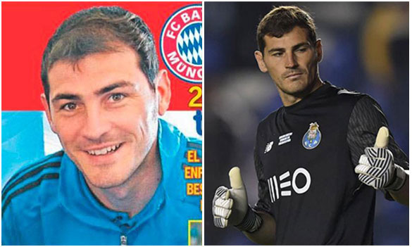 Iker Casillas Injerto de pelo