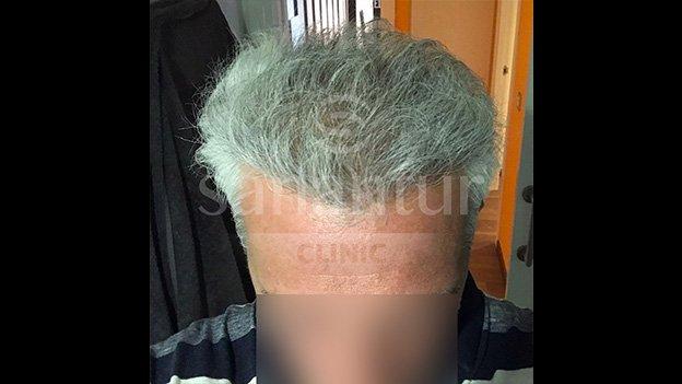 Después implante capilar: Paciente 2