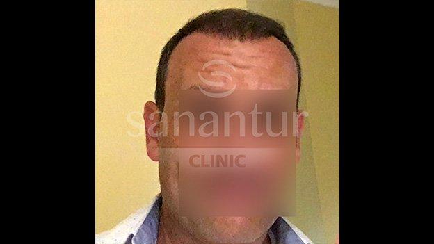 Después del injerto capilar: Paciente 4