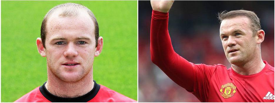 Wayne Rooney trasplante capilar
