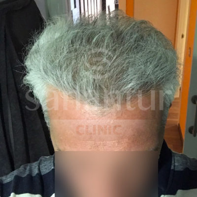 6 months after the hair transplant