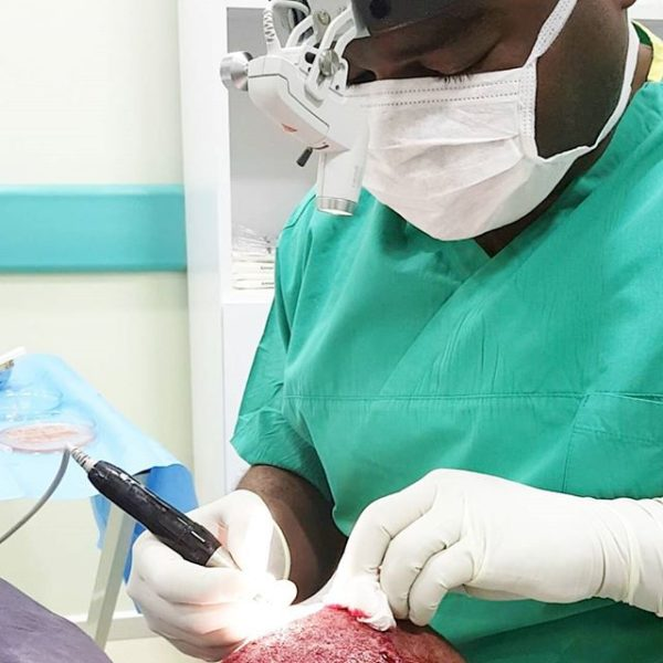 Dr. Mbaraka performing a hair implant