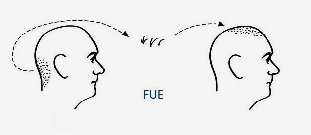 FUE method explainment