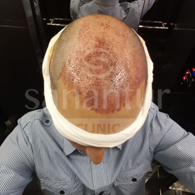 Hair transplant intervention