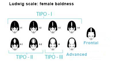 Ludwig scale for female baldness