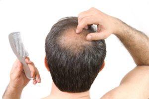 Alternativas que funcionan al Minoxidil