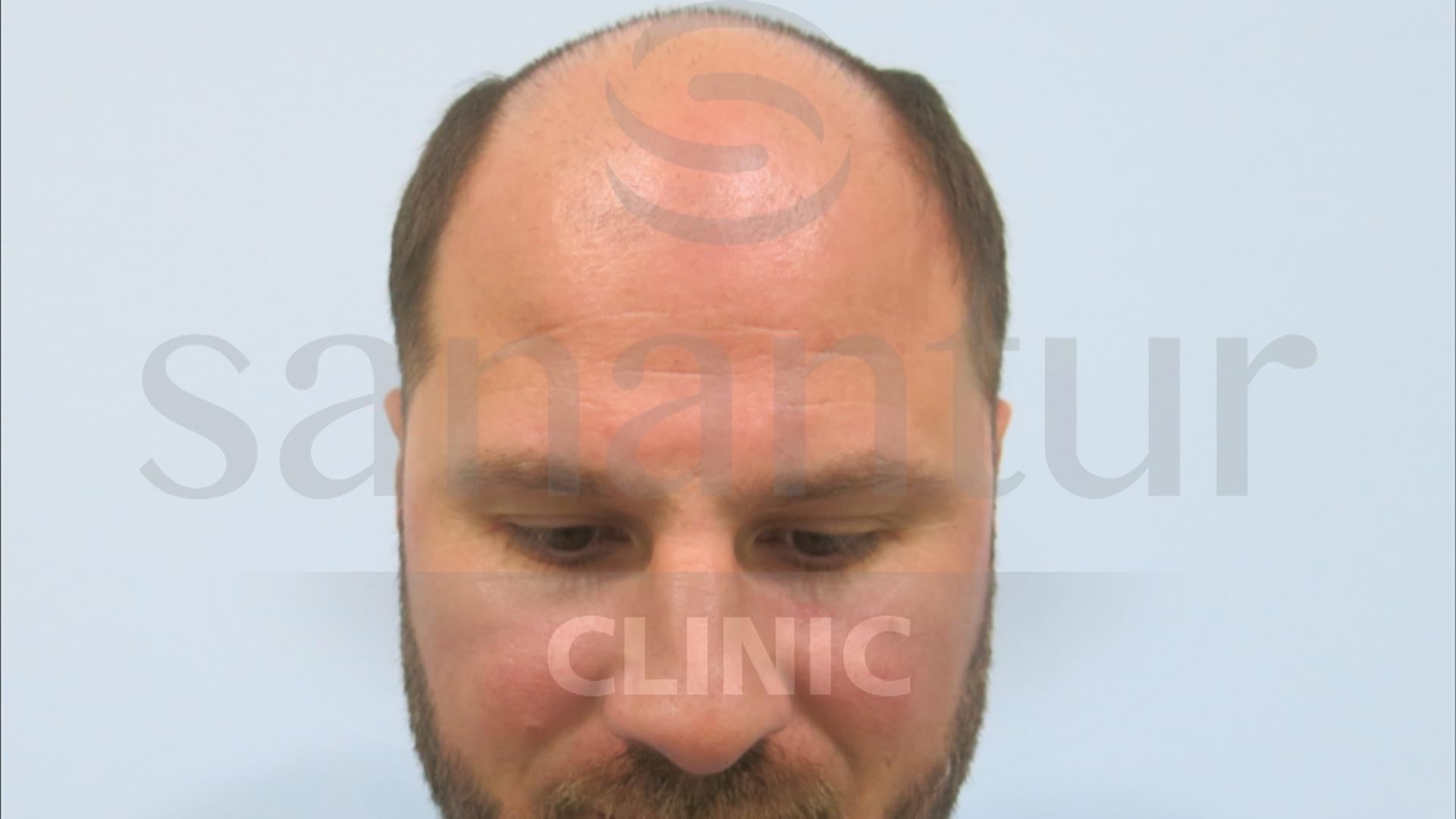 ST antes del injerto de pelo en Turquía