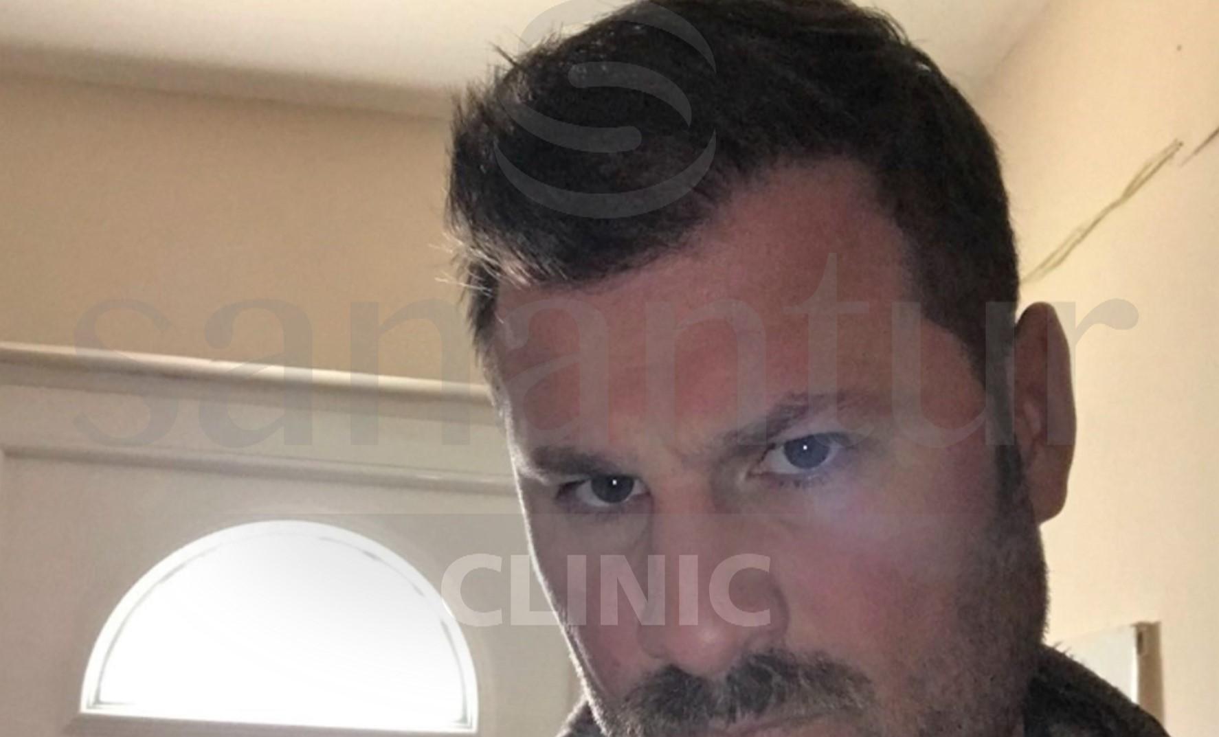ST después del injerto de pelo en Turquía