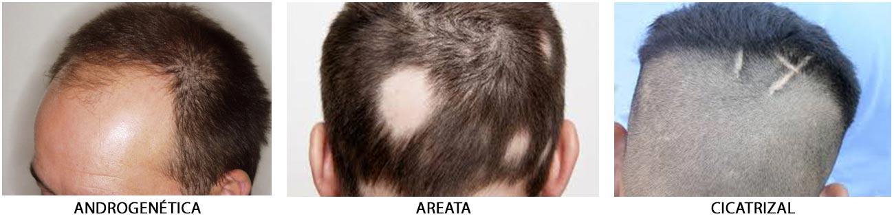 Diferentes tipos de alopecia
