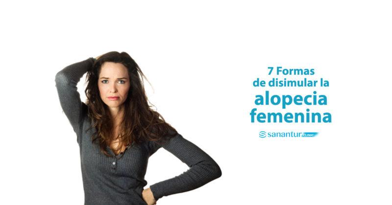 Formas para disimular la alopecia en mujeres