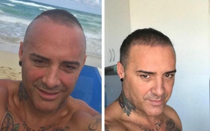 Dinio García implante capilar