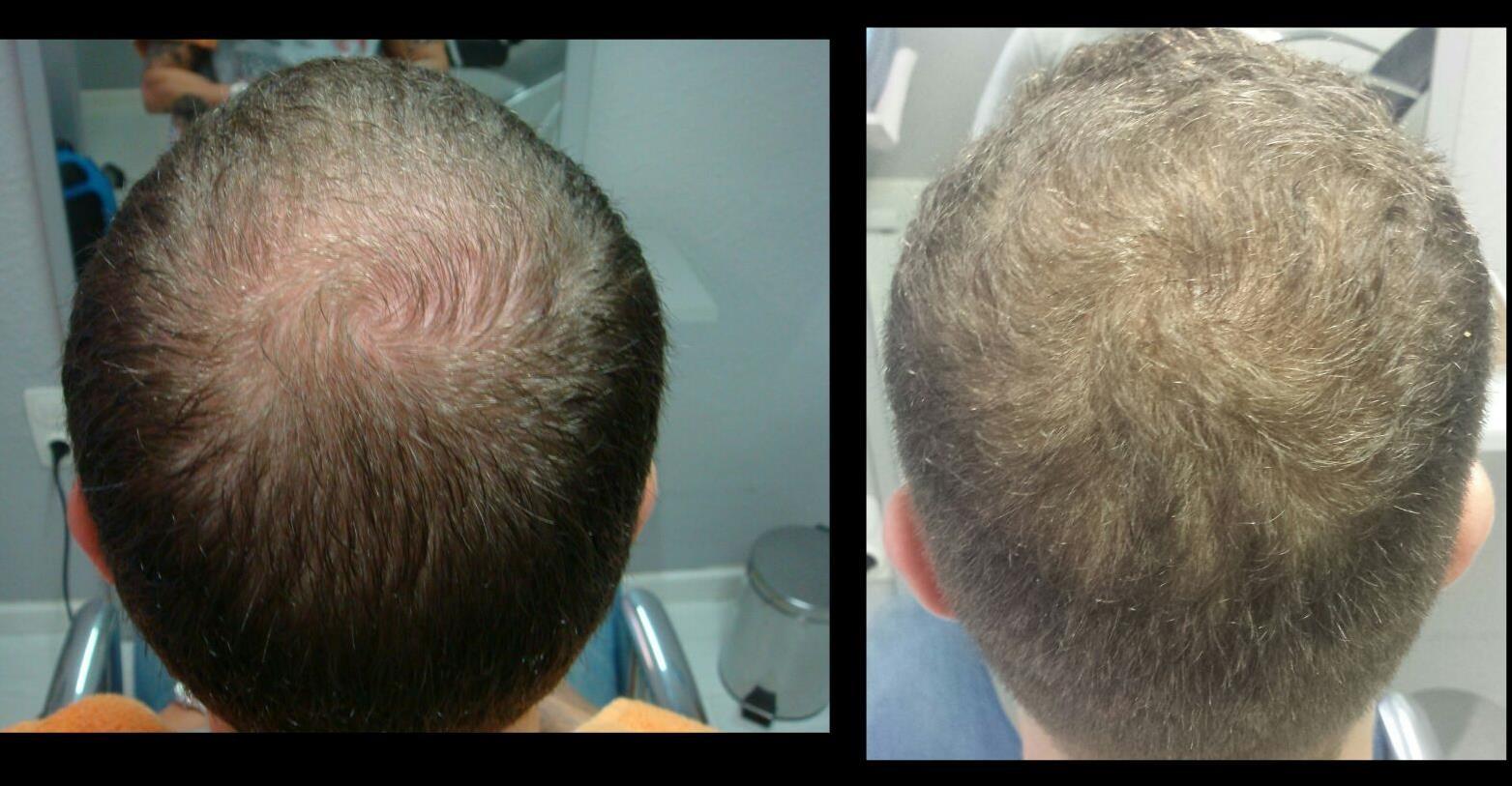 éxito tratamiento celulas madre pelo