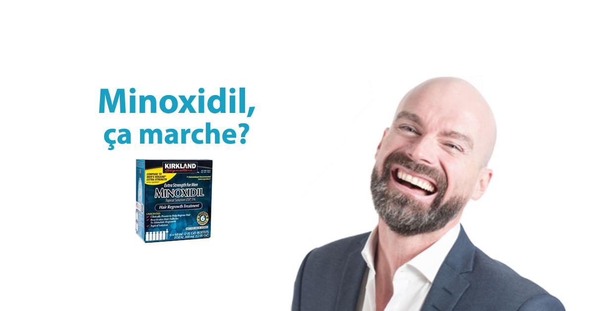 Minoxidil effets secondaires