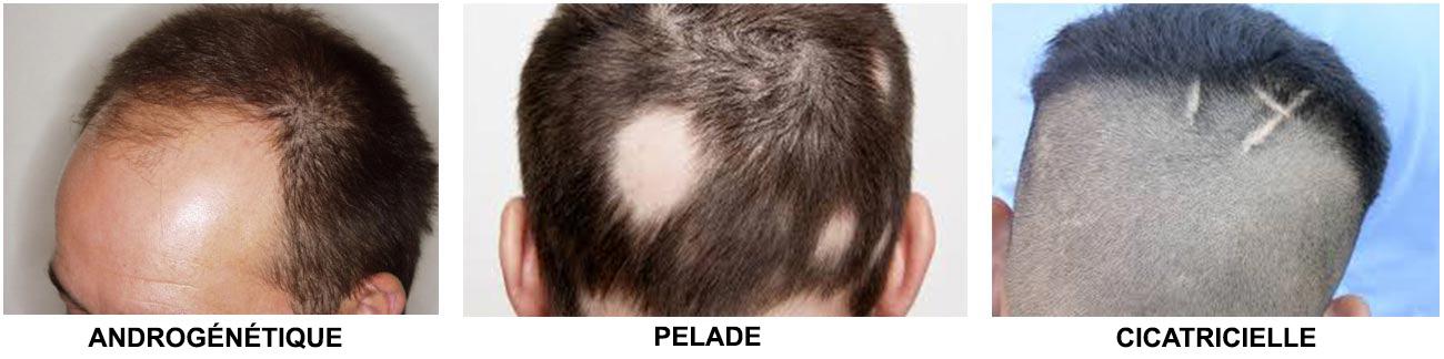 types d'alopécie